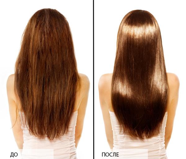 Кожа головы блестит от выпадения волос