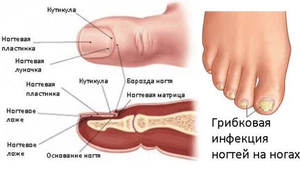 Как наносить мазь при грибке ногтей