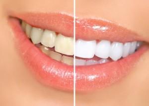 Как отбелить зубы без вреда для эмали в домашних условиях