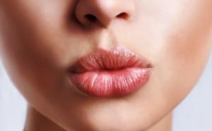 Лечение герпеса на губах в домашних условиях быстро
