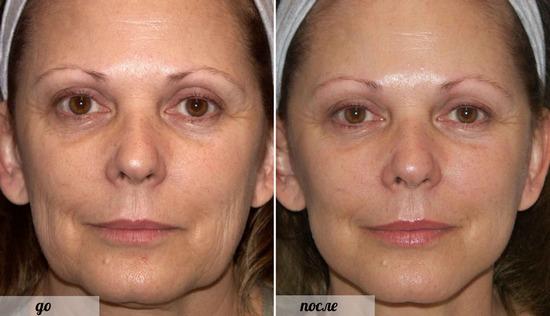 Желатиновая маска для лица от морщин в домашних условиях