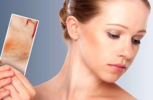 Как убрать покраснение на лице и воспаления от прыщей