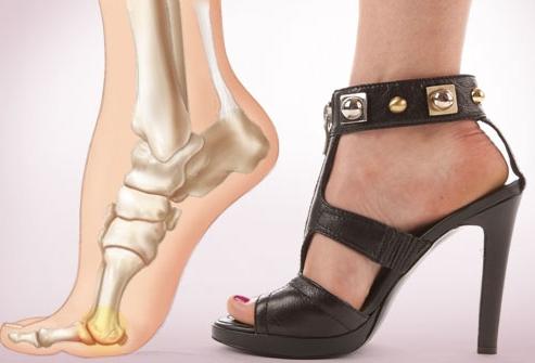 Можно ли ходить на каблуках при остеопорозе