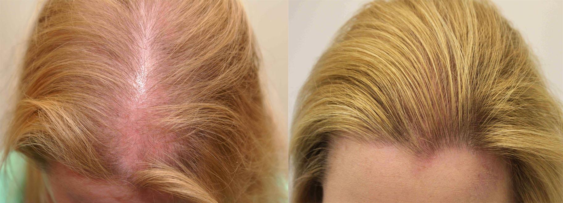 Препараты, вызывающие алопецию или изменяющие цвет волос