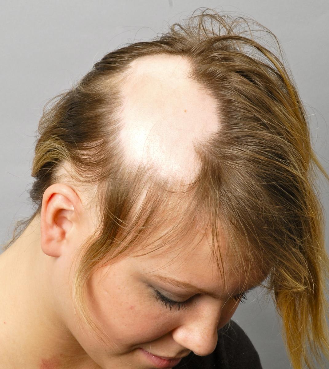 Что делать если волосы на голове начинают выпадать?